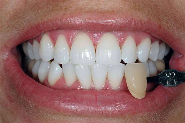 After teeth Whitening at West Dulwich Dental