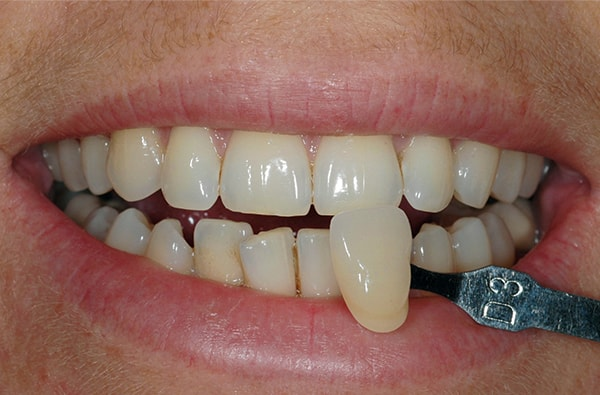 Before teeth Whitening at West Dulwich Dental