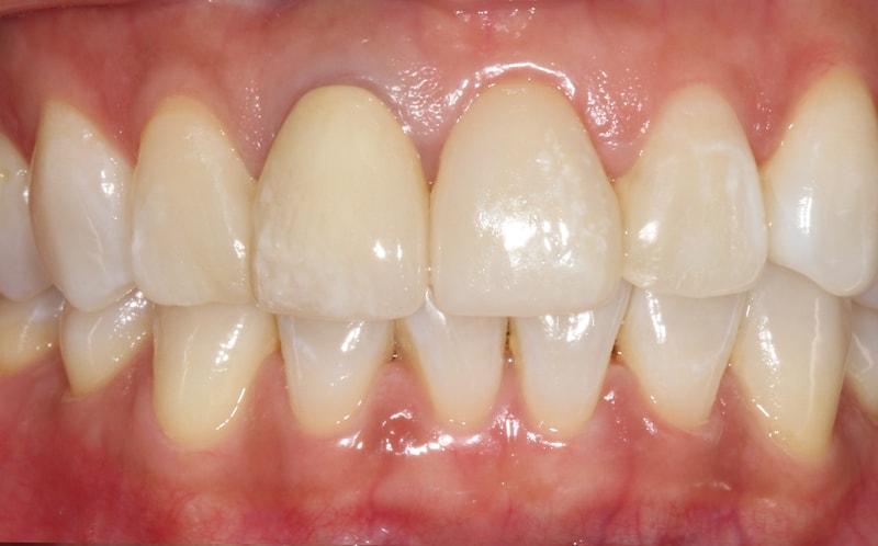 After - Smile Makeover at West Dulwich Dental
