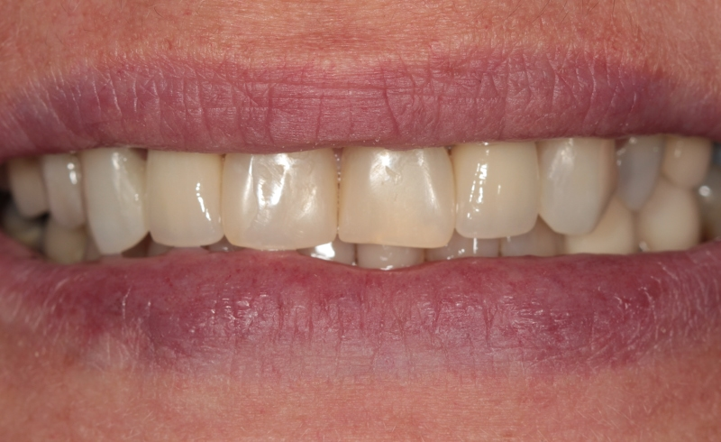 After - Smile Makeover at West Dulwich Dental